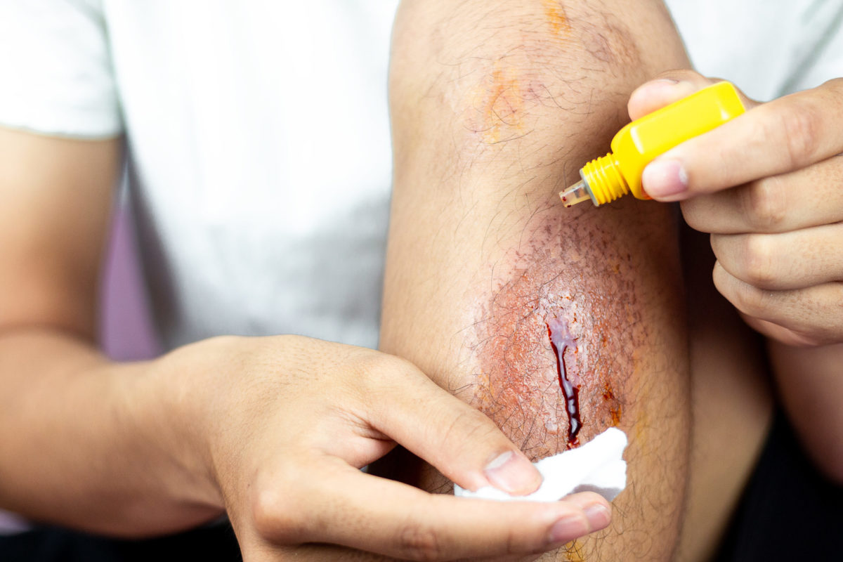 Pressure washing injuries can be painful
